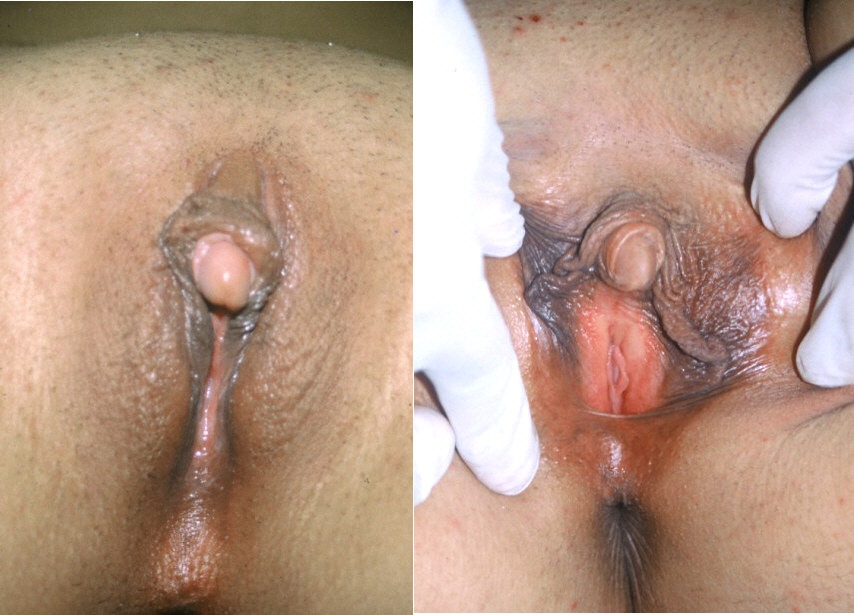 Clitoris enlarged with a clitoris pump